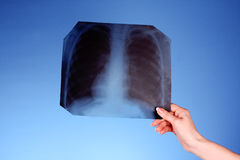 X-Ray Image of chest. On blue background in hand stock photo