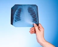 X-Ray Image of chest on blue background. In hand Stock Photo