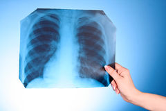 X-Ray Image of chest on blue background. In hand Royalty Free Stock Image