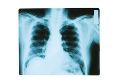 X-ray image of chest bones Royalty Free Stock Photo
