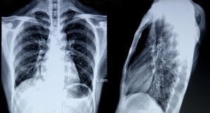 X-ray image of chest. Front and side X-RAY image of heart and chest,it shows normal lung imageology of a femal,aged 51 stock photo