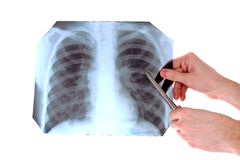 X-Ray Image of chest isolated Royalty Free Stock Image