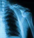 X-ray image of clavicle, AP view. Showing clavicle fracture stock image