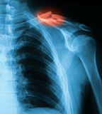 X-ray image of clavicle, AP view. Showing clavicle fracture stock photography
