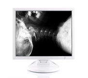 X-ray image and computer Royalty Free Stock Photos