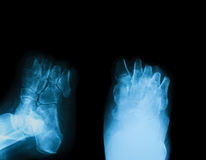 X-ray image of diabetic foot amputation. X-ray image of diabetic foot amputation, AP and oblique view stock images