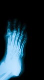 X-ray image of diabetic foot. Royalty Free Stock Photography