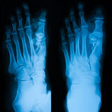 X-ray image of foot, AP and obligue view. Stock Photo