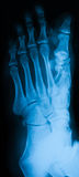 X-ray image of foot, AP view. Royalty Free Stock Photography