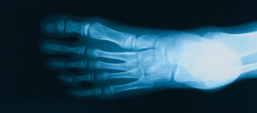 X-ray image of foot, AP view. stock photos