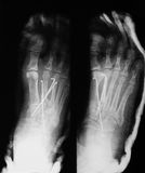 X-ray image of foot fracture, AP and Lateral view Stock Image