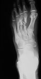 X-ray image of foot oblique view, Royalty Free Stock Photos
