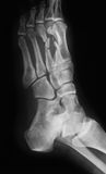 X-ray image of foot, oblique view. X-ray image of foot ,oblique view. show second and third metatarsal fractures Stock Photos