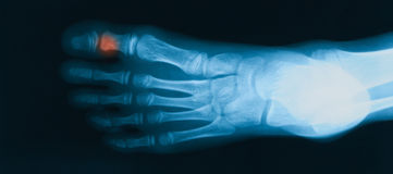 X-ray image of  foot, oblique view. Royalty Free Stock Photography