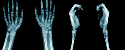 Collection hand and fore arm Royalty Free Stock Images