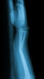 X-ray image of fracture forearm and wooden splint. Royalty Free Stock Images