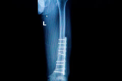 X-ray image of fracture leg ( femur )with implant plate and scre Royalty Free Stock Images