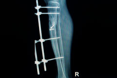 X-ray image of fracture leg ( tibia )with implant Stock Photo