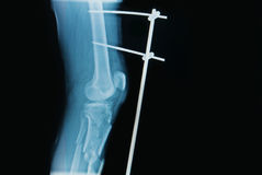 X-ray image of fracture leg ( tibia ). With implant external fixation Royalty Free Stock Photography