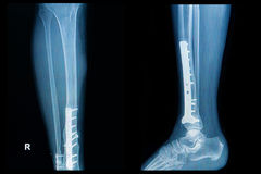 X-ray image of fracture leg (tibia )with implant plate. And  screw Royalty Free Stock Photo