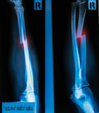 X-Ray Image  fracture shaft of radius & ulnar bone  for a medica Royalty Free Stock Photo