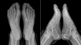 X-ray image of the girl's feet (two views with partially outline. X-ray image of the girl's feet two views with partially outlined socks and trousers Stock Images