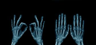 X-ray image hand and finger. Action of hand and finger x-ray Image in blue tone on dark background stock photography