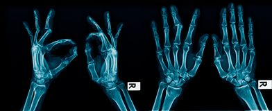 X-ray image hand and finger. Action of hand and finger x-ray Image in blue tone on dark background royalty free stock image