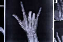 X-ray image of a hand making I love you symbols. X-ray hands with OK sign royalty free stock images