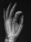X-ray image of hand, oblique view, Stock Photos