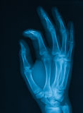 X-ray image of hand. Royalty Free Stock Photos