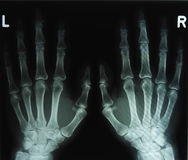 X-ray image of the hands. Left and right Royalty Free Stock Photography