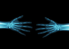 X-Ray image of a handshake. Details of the bone structure of two hands Royalty Free Stock Photos