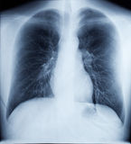 X-Ray Image Of Healthy Chest. X-Ray Image Of Human Healthy Chest Royalty Free Stock Photos