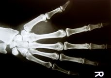 X-ray image of healthy normal human hand stock image