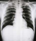 X-Ray Image Of Human Ches tbones for a medical diagnosis Royalty Free Stock Image