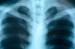 X-Ray Image Of Human Chest Stock Image