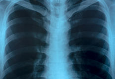 X-Ray Image Of Human Chest. X-Ray Image Close up Of Human Chest Stock Photo