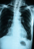 X-Ray Image Of Human Chest. X-ray film Stock Image