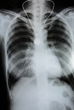 X-Ray Image Of Human Chest Royalty Free Stock Image