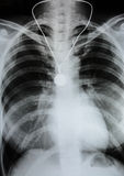 X-Ray Image Of Human Chest. X-ray film Royalty Free Stock Image