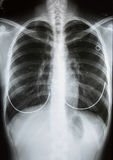 X-Ray Image Of Human Chest. X-ray film Stock Photos