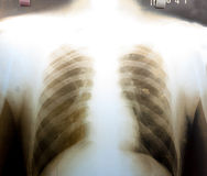 X-Ray Image of human chest Stock Photography