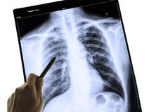 X-Ray Image Of Human Chest for a medical diagnosis. And hand pointing royalty free stock images