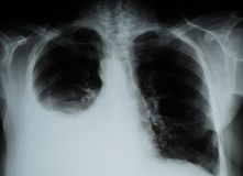 X-ray image of Human Chest Stock Images
