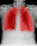 X-ray. Image Of Human Chest - TB screening royalty free stock photo
