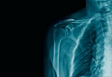 X-ray image clavicle fracture. X-ray image human clavicle fracture in blue tone stock photos
