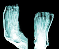 X-Ray. Image of human foot stock photography