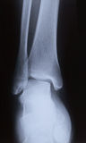 X-ray image of human foot joint , back view Royalty Free Stock Image