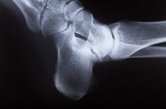 X-ray image of human foot joint , side view. X-ray image of human foot joint stock image